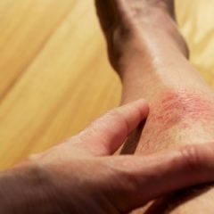 Identifying the Eczema, Its Symptoms and Treatment